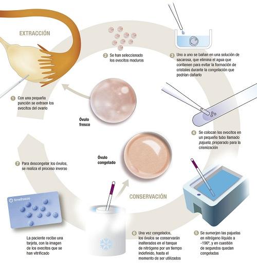 Congelacion de ovulos