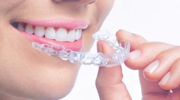 Precio de ortodoncia transparente Invisalign